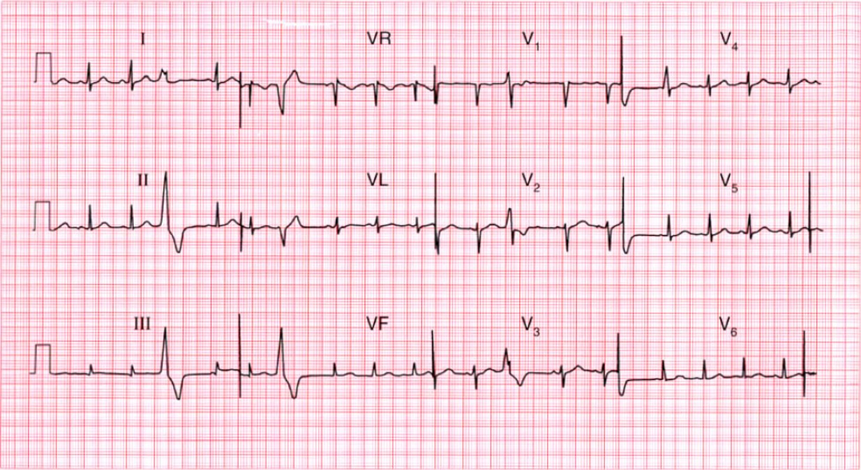 ECG Case Discussion www.rishacademy.com
