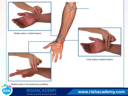 Blood Supply of the Upper Limb www.rishacademy.com