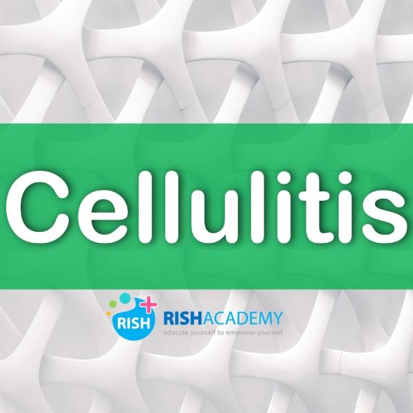 cellulitis www.rishacademy.com (Custom)