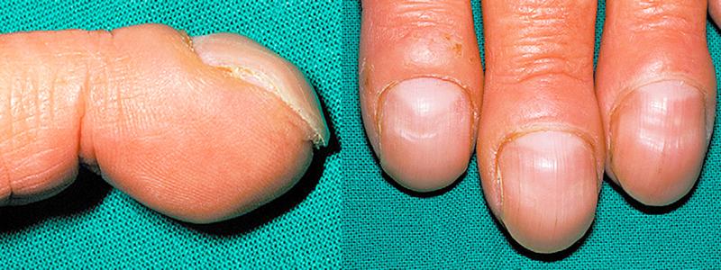 finger clubbing www.rishacademy.com 2